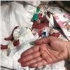 «Наша задача - сделать невозможное»: вКрасноярске выхаживают младенца весом 500 граммов