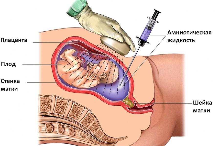 Можно ли определить во время беременности синдром дауна